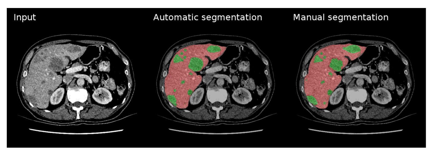 Using AI in Radiology – How GPUs and AI are Augmenting the Great Work Already Being Done