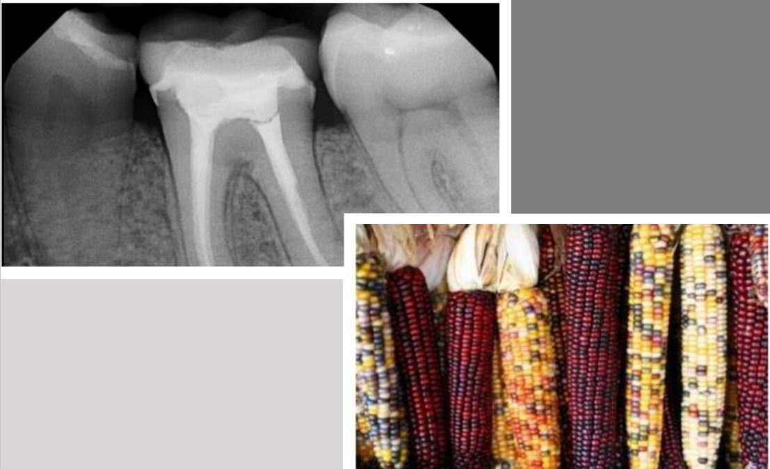 Images from https://fr.slideshare.net/Subhradeepsarkar/transposable-elements-in-maize-and-drosophila/16 and https://hospitallane.com/treatment/root-canal-treatment/